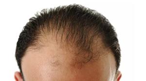头秃有救了?研究揭示压力造成脱发原因