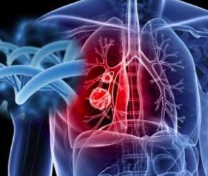 肺癌检查方法有哪些 什么是常见的肺癌的饮食保健