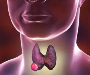 患了甲状腺癌会有什么样的症状 甲状腺癌手术费用需要多少