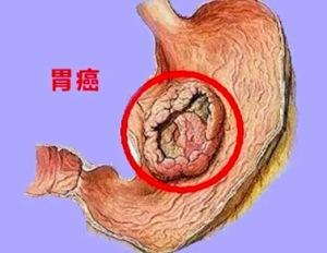 胃全切后饮食上要注意什么 老人胃癌疼痛怎么办