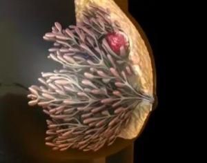 乳腺癌的风险因素有哪些? 乳腺癌危险因素有哪些