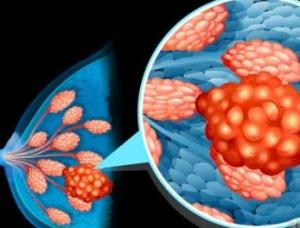 """未婚初产年龄超30易得乳腺癌吗 哪些女性的乳房成""""危房"""""""