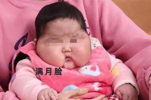 """""""用抑菌霜變大頭娃""""女嬰父親否認炒作:拍視頻是為提醒別人"""