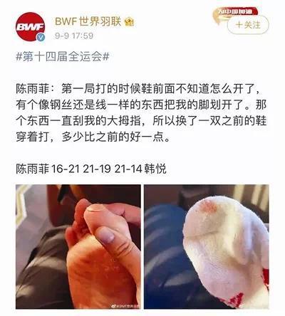 """运动鞋划伤奥运冠军脚,李宁脱离""""运动""""根本属性的过度营销令产品""""失重"""""""
