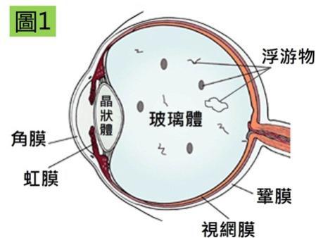 """眼睛经常看到""""虫子"""",昆明眼科医院:可能是飞蚊症!"""