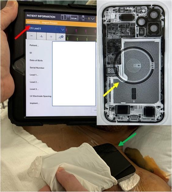 苹果警告iPhone12别靠近心脏起搏器是怎么回事?安全距离是多少?苹果哪些设备对医疗设备造成干扰?