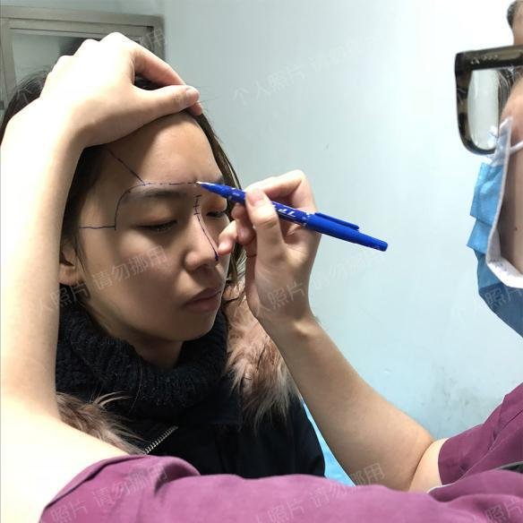 武汉爱思特杨水斌做隆鼻效果好吗?分享杨水斌隆鼻术前术后案例效果对比图!