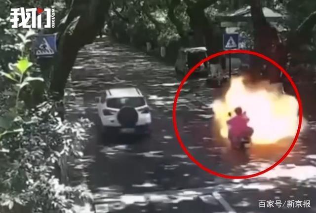 杭州电瓶车烧伤女孩或终生插管