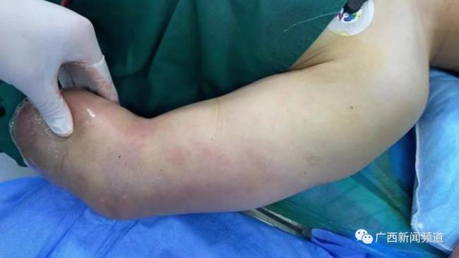 男子做饭时受伤,手臂被截去三分之二才保住性命